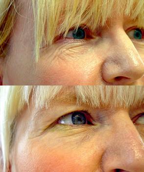 Før og etter 4 behandlinger