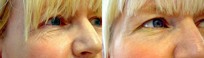 Fraksjonert laserbehandling rynker under øyet