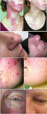 Forskjellig hudproblemer løses med ulike lasere